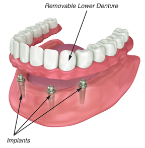 Buffalo dental implants